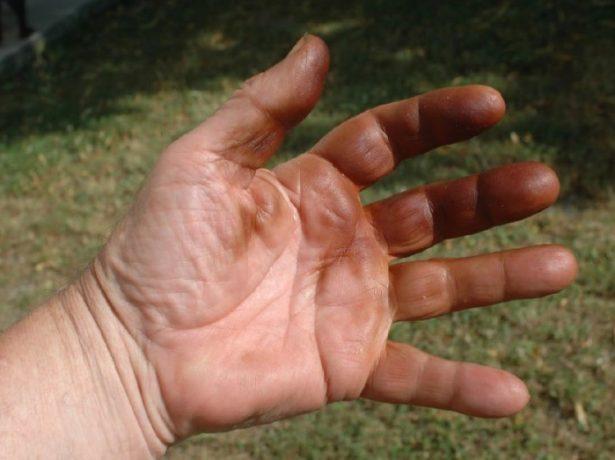 Чим очистити руки від зелених горіхів: позбавляємося від вїдаються плям